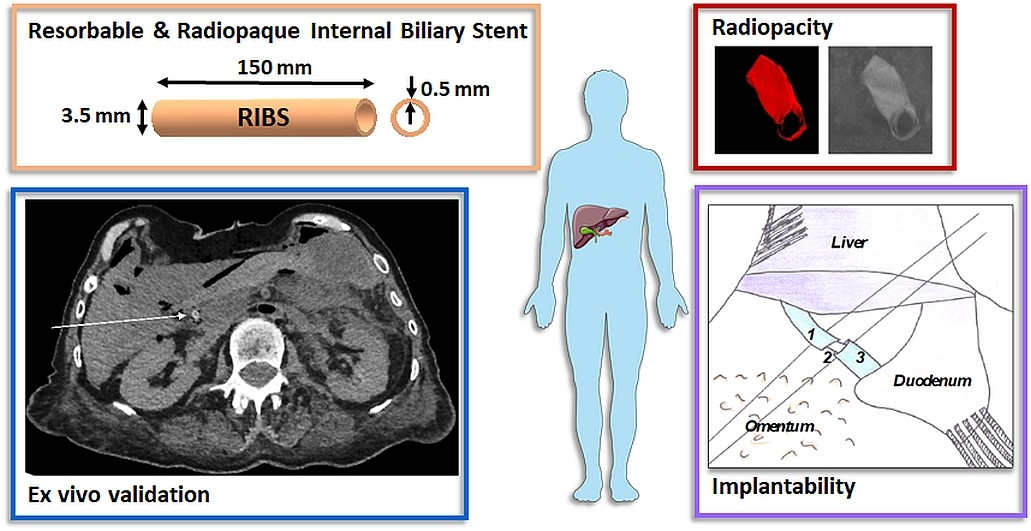 Girard E. et al. Acta Biomaterialia 2020